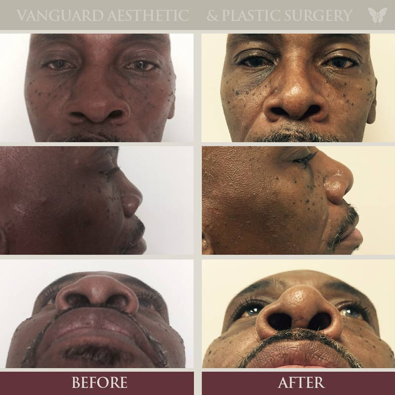 Before and after of african american man with rhinoplasty surgery