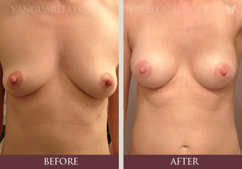 Before and after photo of 30 year old woman who received a breast lift