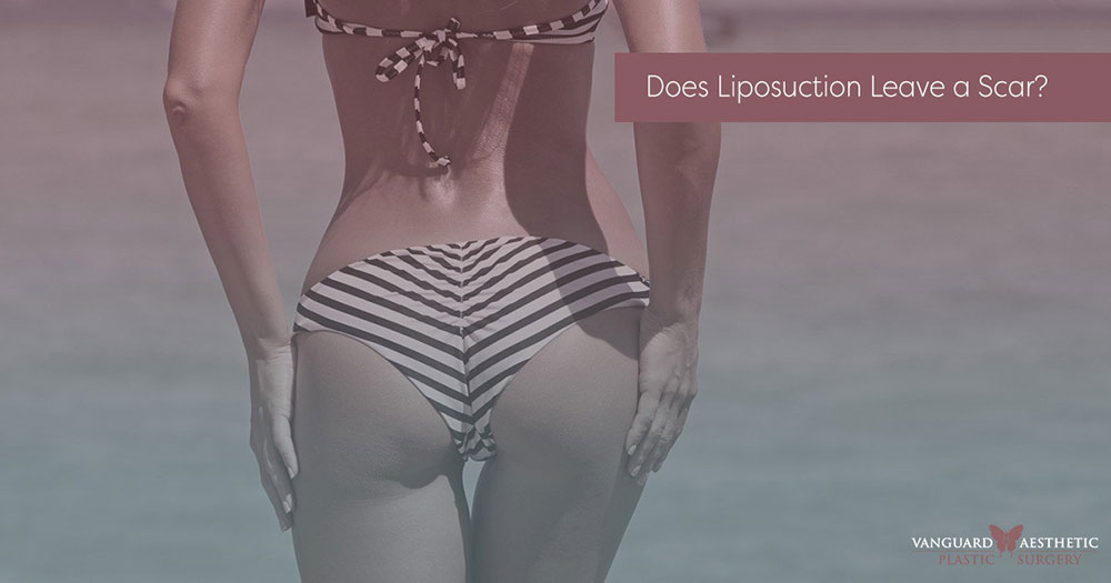 Does liposuction leave a scar, not for this woman in her sexy bikini