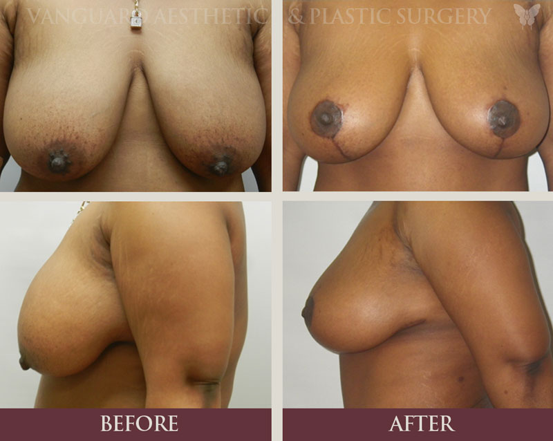 florida plastic surgery breast lift before and after mommy makeover