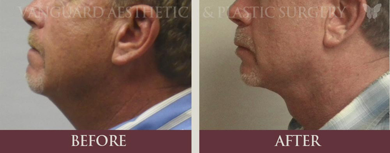 florida neck lift chin implant before and after