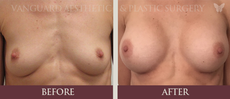 florida plastic surgery breast augmentation before and after