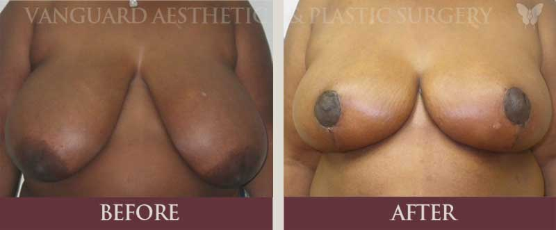florida plastic surgery breast reduction before and after