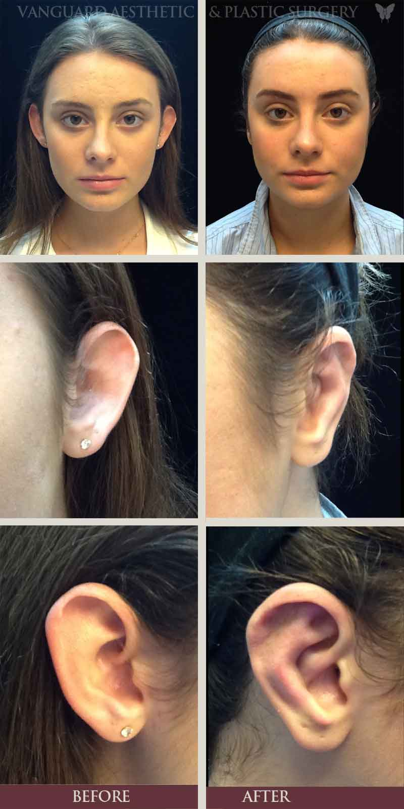 florida plastic surgery ear surgery otoplasty before and after