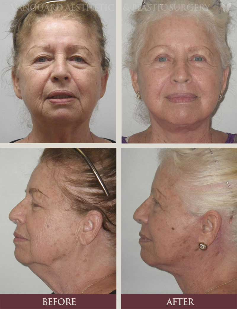 florida plastic surgery neck lift face lift before and after