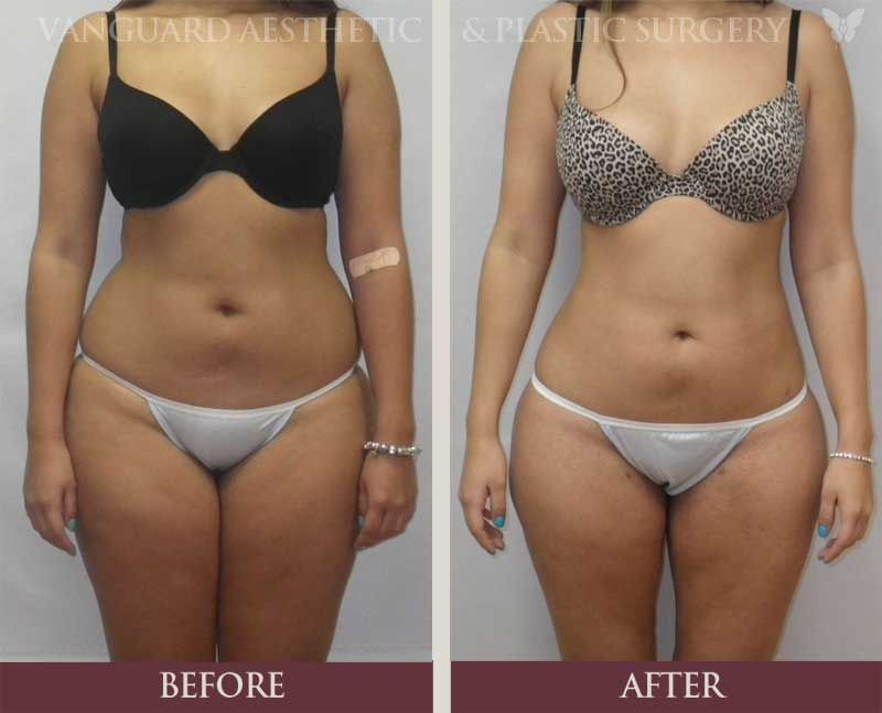 florida plastic surgery before and after liposuction