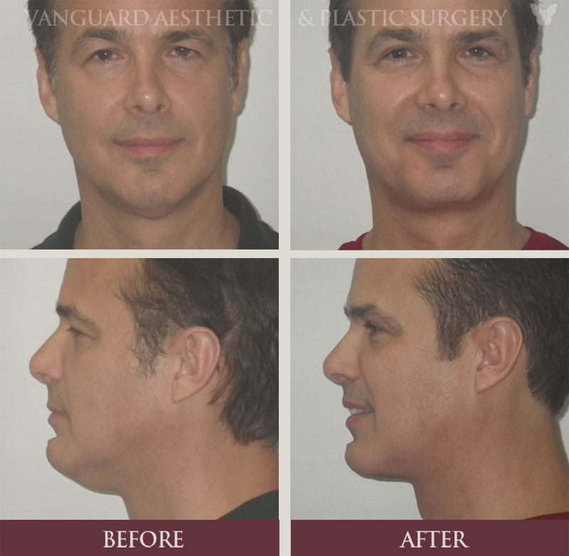 florida plastic surgery male neck lift before and after