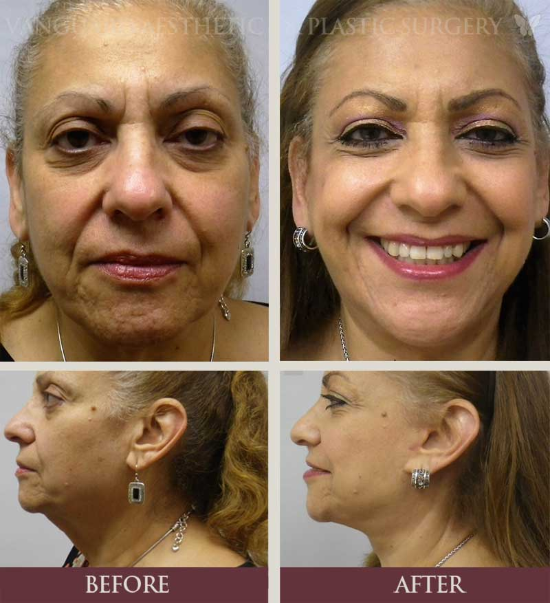florida plastic surgery neck lift before and after
