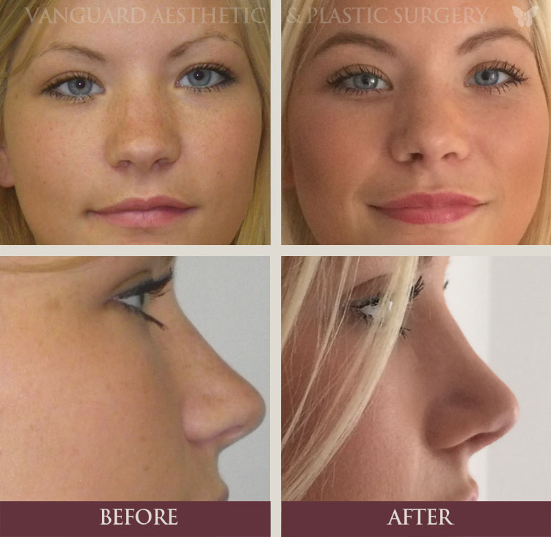 florida plastic surgery rhinoplasty nose job before and after