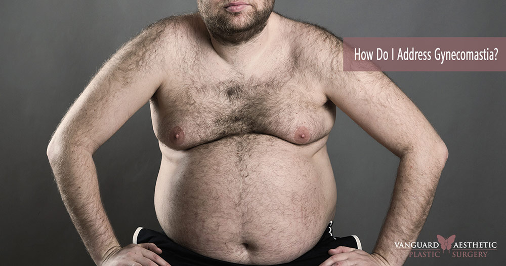 """Man with hairy chest and """"Man Boobs"""". How do I get rid of man boobs?"""