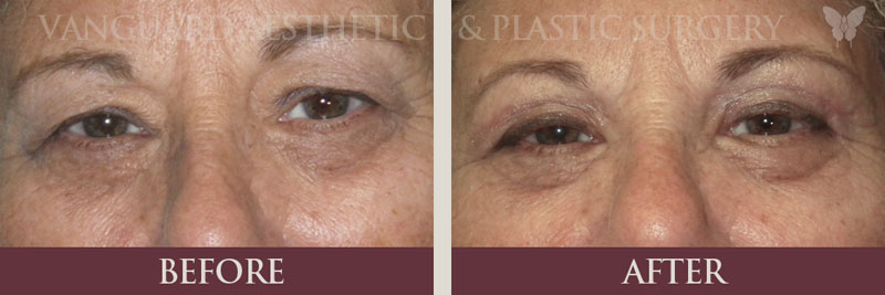 florida eye lid lift blepharoplasty before and after