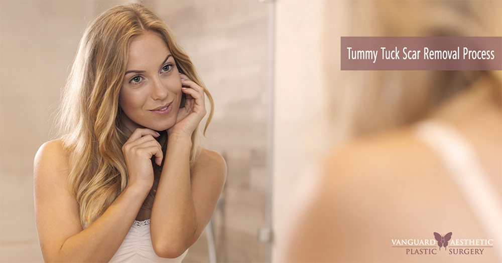 "Image of a woman looking at herself in the mirror after having ""Tummy Tuck Scar Removal""."