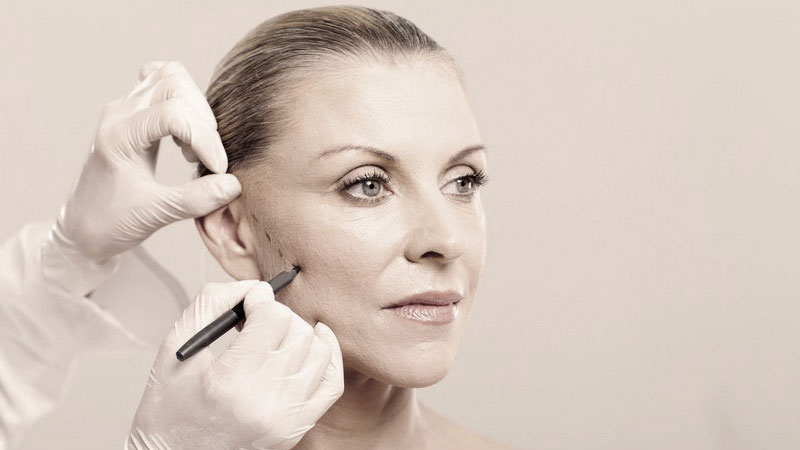 Older woman's face being drawn on by the surgeon