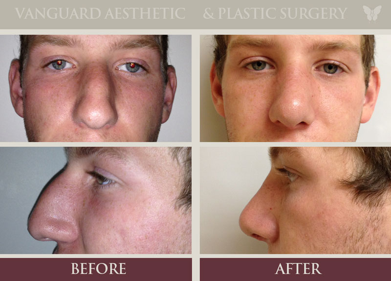 Photo before and after of caucasian man with rhinoplasty surgery